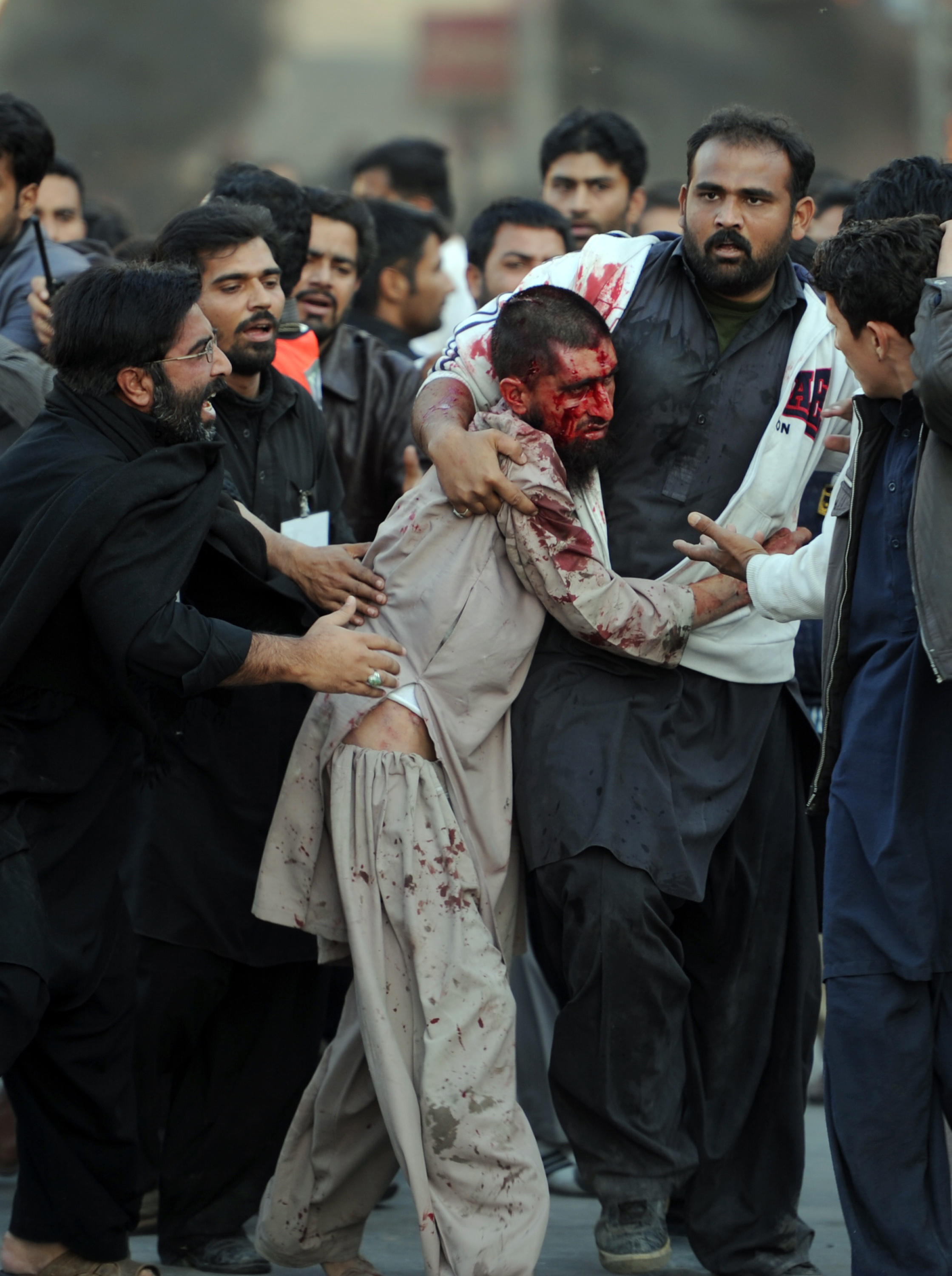 Pakistani Shiite Muslims assist an injured Sunni Muslim following clashes during an Ashura procession in Rawalpindi on November 15, 2013. Sectarian clashes in Pakistan's garrison city Rawalpindi left two people dead and over 20 injured as worshippers massed to mourn the seventh century martyrdom of Hussain, the grandson of prophet Mohammad. The clashes erupted in Rawalpindi when a procession by Shiite Muslims was underway in the main downtown area and a prayer sermon in a nearby Sunni Muslim mosque started at the same time. AFP PHOTO/Aamir QURESHI